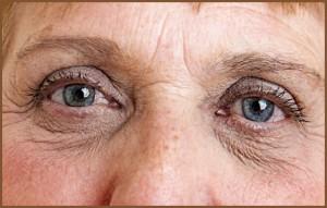 Senior Person Eyes