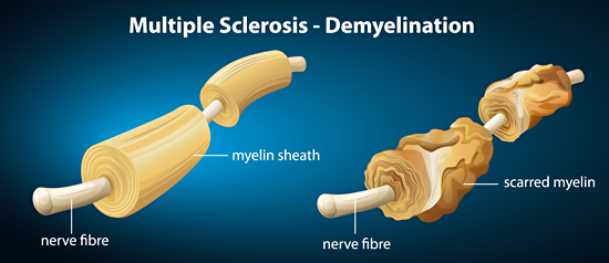 Multiple Sclerosis - Demylination