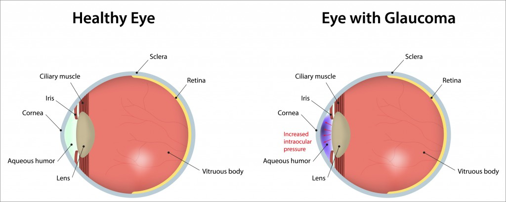 Eye-With-Glaucoma